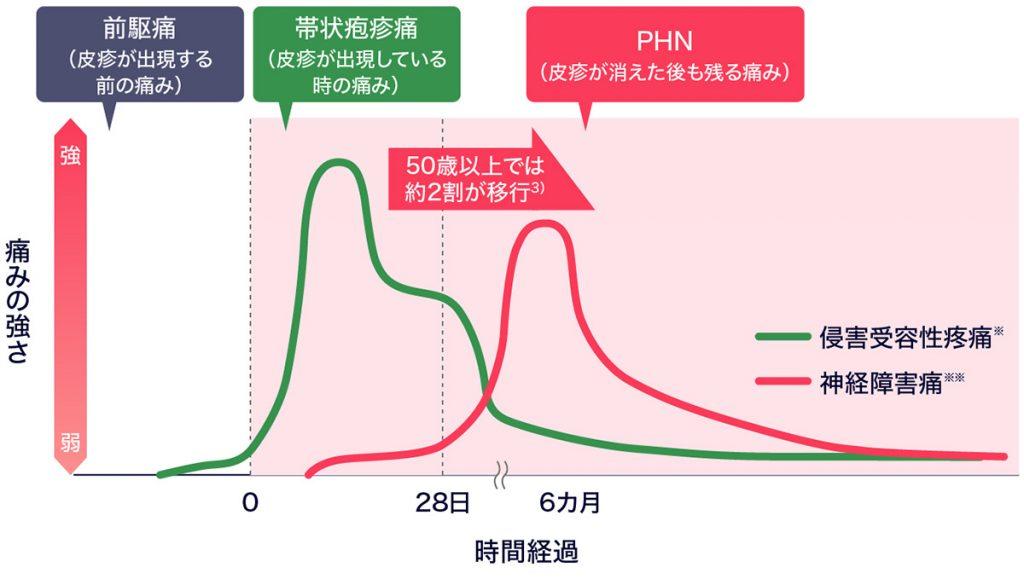 図:帯状疱疹の痛みと時間経過