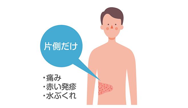 図:帯状疱疹の症状